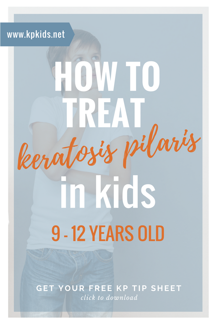 How to treat keratosis pilaris kids 9 10 11 12 years | KPKids.net