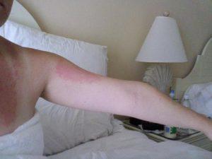 Dermatitis Hives